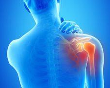 L'artrosi: dall'indagine radiologica al trattamento chirurgico